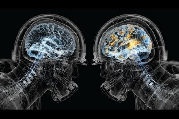 Super Bowl 50 Spurs Heightened Security Plans; Overhead Muni Wires To Remain Intact